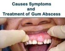 Causes of gum boils