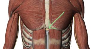 Xiphoid Process: Sternum Lump Pain Treatment