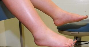 Hypervolemia (Fluid Overload) Definition, Symptoms, Treatment