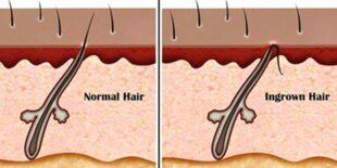 Ingrown Hair on HeadScalp Causes, Symptoms, Treatment
