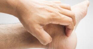 Itchy Ankles - Causes, Signs, Treatment