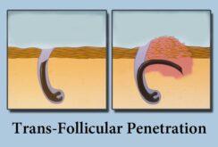 Transfollicular penetration