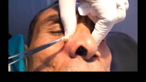 Pictures of Cyst on nose