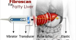 Fibroscan Test for Liver Fibrosis - Cost, Score, Result