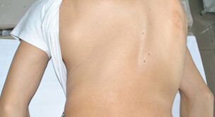 Kyphoscoliosis of Thoracic Spine- Symptoms and Treatment