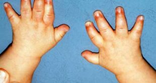 Prader Willi Syndrome (PWS) Life Expectancy, Treatment, Pictures