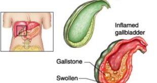 Acalculous cholecystitis Symptoms, Pathophysiology, Causes, Treatment