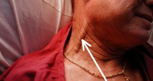 kussmaul sign Mechanism, Pathophysiology, Causes, Treatment