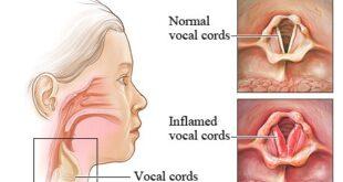 Laryngotracheobronchitis Symptoms, Causes, Pathophysiology, Treatment
