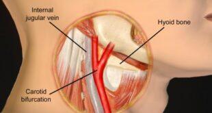 Carotid Sinus Massage, Hypersensitivity, Syndrome