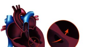 Holosystolic Murmur Symptoms, Causes, Sound, Treatment
