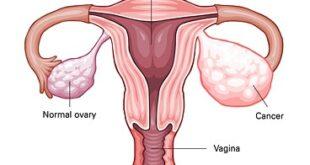 Dysgerminoma Symptoms, Causes, Treatment, Prognosis, Tumor Markers