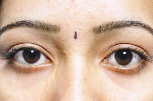 Adenoma Sebaceum Images, Symptoms, Causes, Histology, Treatment