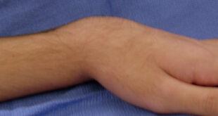 Silver Fork Deformity