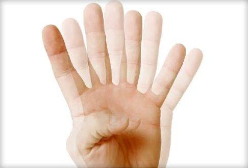 Vertical Diplopia Symptoms, Causes, Treatment